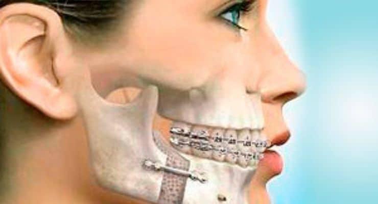cirurgia-ortognatica