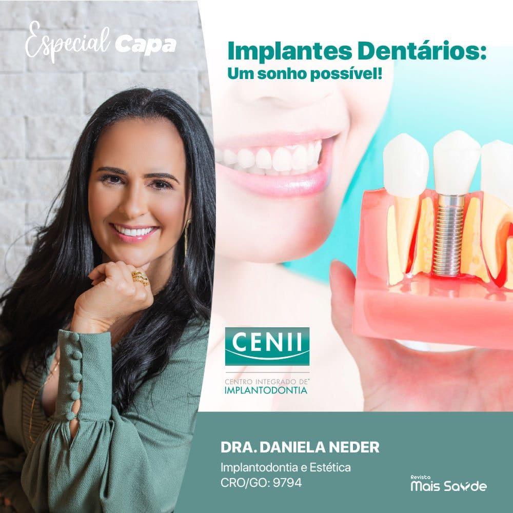 cenii-implantes-dentarios