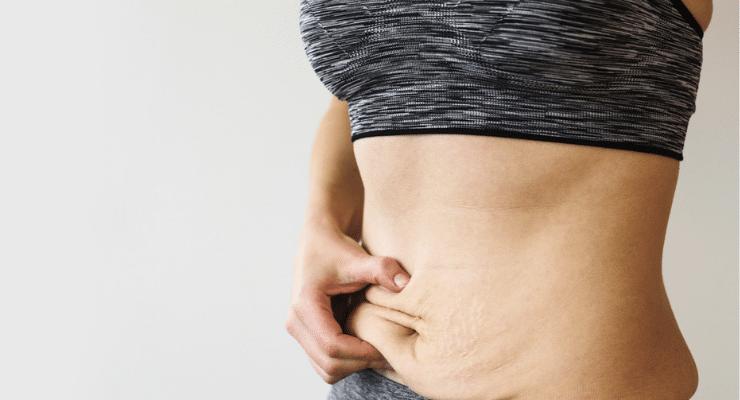 flacidez-abdominal